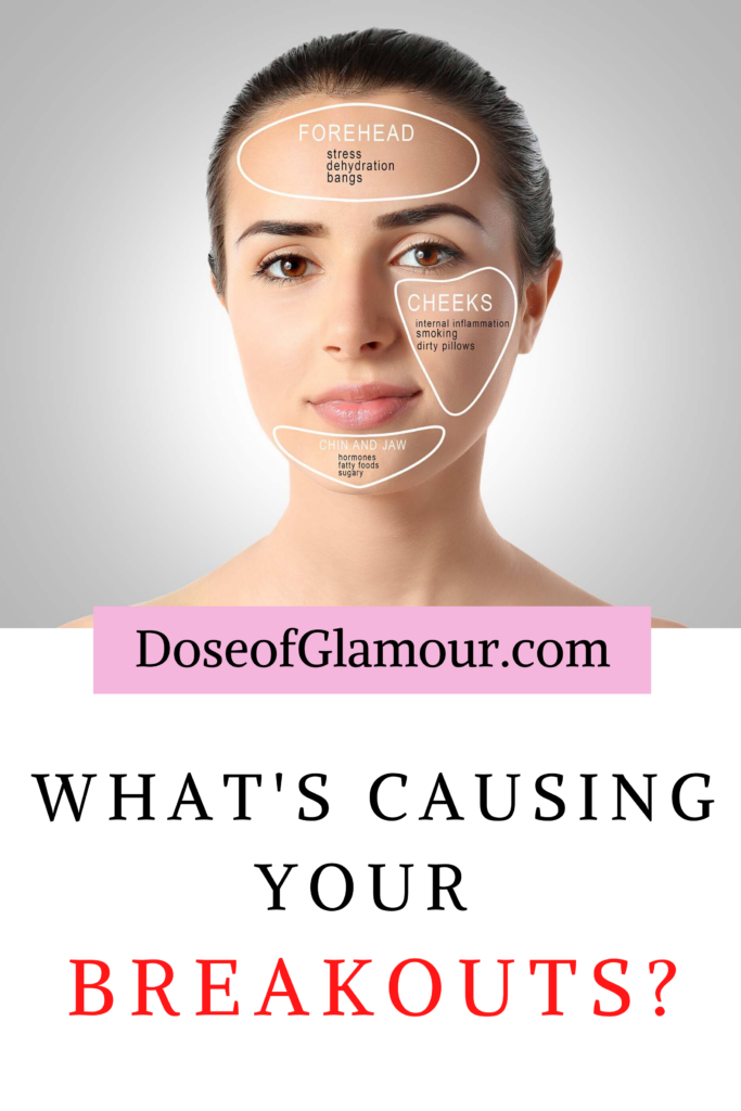 What are your breakouts telling You_